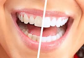 Отбеливание зубов: что это такое?